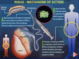 New Birth Control Method for Men: RISUG Is One Shot, 100% Effective